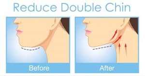 Exercise to Reduce Double Chin Before After